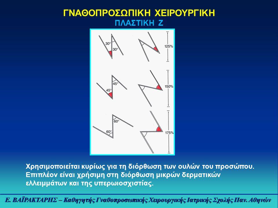 ΓΝΑΘΟΠΡΟΣΩΠΙΚΗ ΧΕΙΡΟΥΡΓΙΚΗ ΠΛΑΣΤΙΚΗ Ζ Χρησιμοποιείται κυρίως για τη διόρθωση των ουλών του προσώπου.