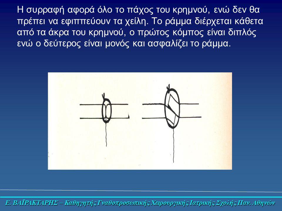 Ε. ΒΑΪΡΑΚΤΑΡΗΣ – Καθηγητής Γναθοπροσωπικής Χειρουργικής Ιατρικής Σχολής Παν.