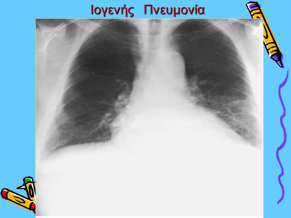 Ιογενής Πνευμονία Ιογενής Πνευμονία