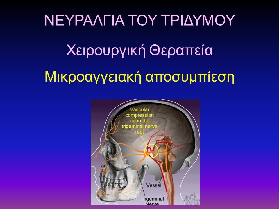 ΝΕΥΡΑΛΓΙΑ ΤΟΥ ΤΡΙΔΥΜΟΥ Μικροαγγειακή αποσυμπίεση Χειρουργική Θεραπεία