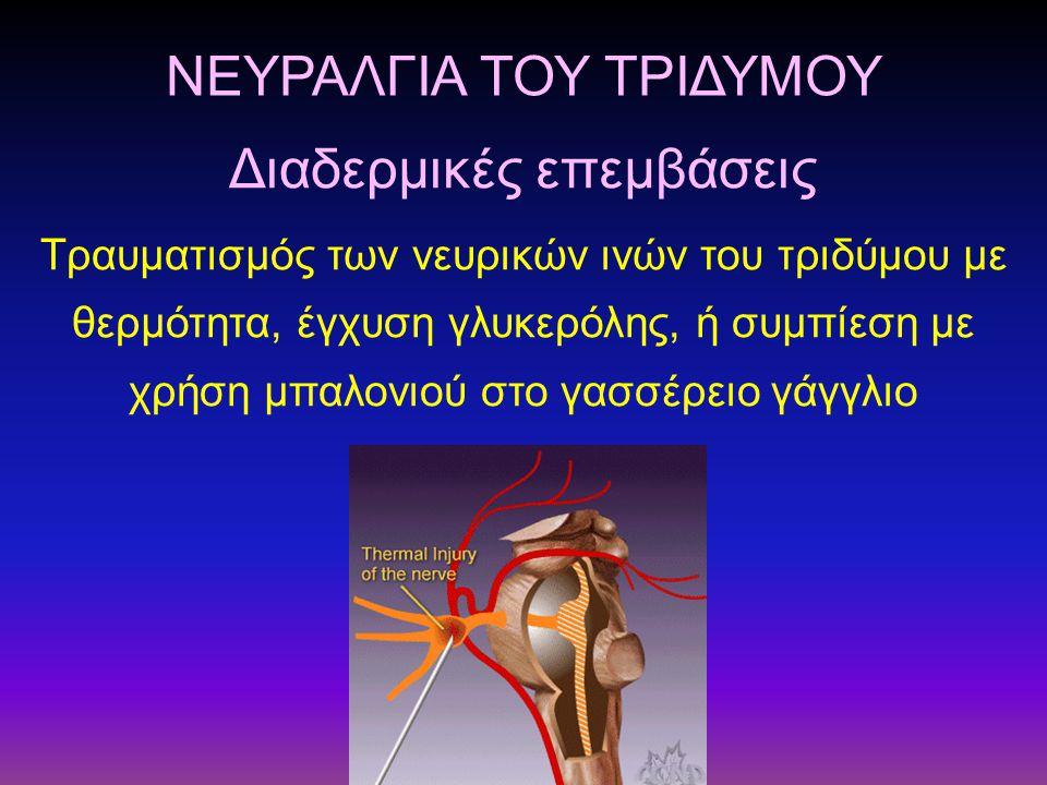 ΝΕΥΡΑΛΓΙΑ ΤΟΥ ΤΡΙΔΥΜΟΥ Τραυματισμός των νευρικών ινών του τριδύμου με θερμότητα, έγχυση γλυκερόλης, ή συμπίεση με χρήση μπαλονιού στο γασσέρειο γάγγλι