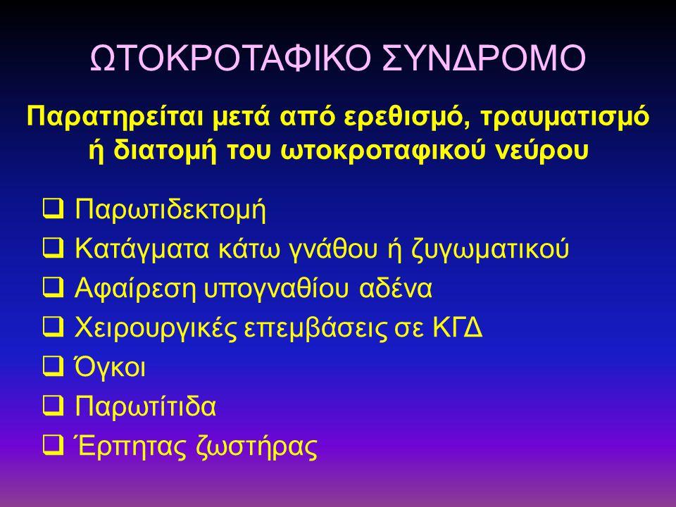  Παρωτιδεκτομή  Κατάγματα κάτω γνάθου ή ζυγωματικού  Αφαίρεση υπογναθίου αδένα  Χειρουργικές επεμβάσεις σε ΚΓΔ  Όγκοι  Παρωτίτιδα  Έρπητας ζωστ