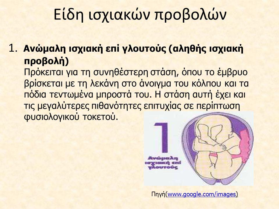 Είδη ισχιακών προβολών 1. Ανώμαλη ισχιακή επί γλουτούς (αληθής ισχιακή προβολή) Πρόκειται για τη συνηθέστερη στάση, όπου το έμβρυο βρίσκεται με τη λεκ