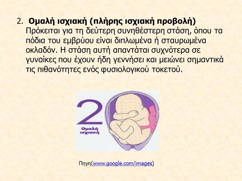 2. Ομαλή ισχιακή (πλήρης ισχιακή προβολή) Πρόκειται για τη δεύτερη συνηθέστερη στάση, όπου τα πόδια του εμβρύου είναι διπλωμένα ή σταυρωμένα οκλαδόν.