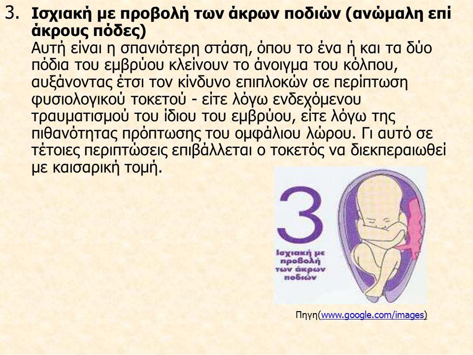 Προδιαθεσικοί Παράγοντες Πολυτοκία Πολύδυμη εγκυμοσύνη Υδράμνιο ή και ολιγάμνιο Ανεγκεφαλία και υδροκεφαλία Προηγούμενος τοκετός ισχιακής προβολής Παθολογικές καταστάσεις της μήτρας και της πυέλου.