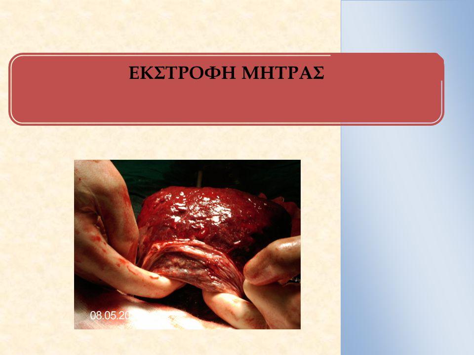 Ορισμός Αναστροφή και πρόπτωση του πυθμένα της μήτρας μέσα στην ενδομητρική κοιλότητα κατά το 1ο 24ωρο του τοκετού.