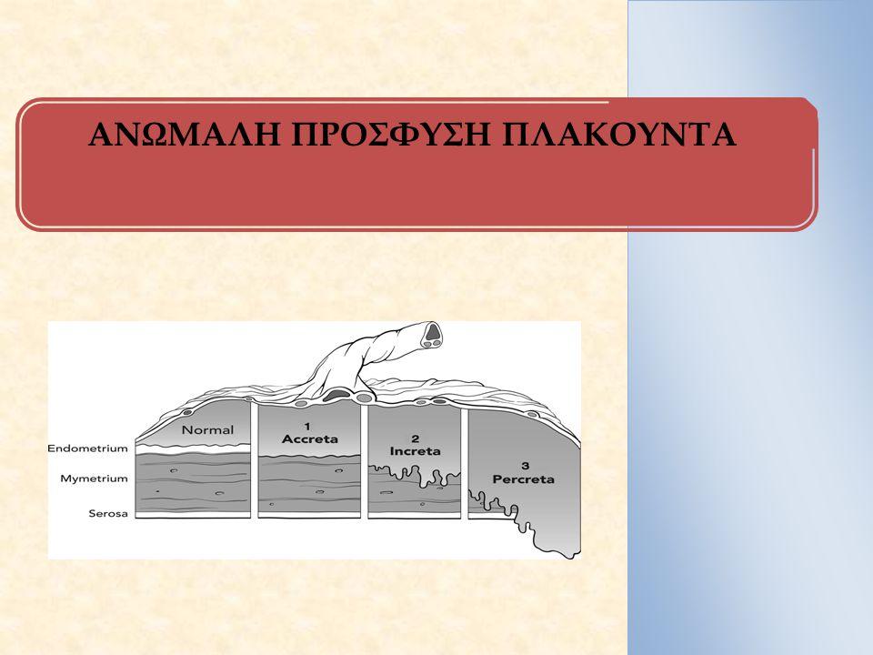 ΟΡΙΣΜΟΙ/ΕΠΙΔΗΜΙΟΛΟΓΙΑ/ΠΡΟΔΙΑΘΕΣΗ ΟΡΙΣΜΟΣ Διείσδυση χοριακών λαχνών στο τοίχωμα της μήτρας επί εδάφους ανεπάρκειας ή απουσίας βασικού φθαρτού ΤΥΠΟΙ Αναλόγως του βάθους διείσδυσης των χοριακών λαχνών: 1.Συμφυτικός πλακούντας (Placenta accreta): επιφανειακή διείσδυση στο τοίχωμα της μήτρας (χωρίς να διηθείται το μυομήτριο), δε δύναται να διαχωριστεί από αυτό  συχνότερος τύπος (78%) 2.Στιφρός πλακούντας (Placenta increta): διείσδυση στο μυομήτριο (17%) 3.Διεισδυτικός πλακούντας (Placenta percreta): διείσδυση μέχρι τον οργόνο και ενίοτε γειτονικών οργάνων, π.χ ουροδόχου κύστης (5%) ΕΠΙΔΗΜΙΟΛΟΓΙΚΑ/ΠΑΡΑΓΟΝΤΕΣ ΚΙΝΔΥΝΟΥ f: 1/533 κυήσεις, 120% αύξηση τελευταία 12ετία, παράλληλη αύξηση με αύξηση καισαρικών τομών 1.Προδρομικός πλακούντας 2.Προηγηθείσα καισαρική τομή (Ο κίνδυνος σε γυναίκες με προδρομικό πλακούνται & 1 ΚΤ: 3%, 2 ΚΤ: 11%, 3 ΚΤ: 40%, 4 ΚΤ: 61%, 5 ΚΤ: 67%) 3.Απόξεση ενδομητρίου 4.Προηγούμενα χειρουργεία στη μήτρα (αφαίρεση ινομυωμάτων, κτλ) 5.Προχωρημένη ηλικία μητέρας κατά την κύηση 6.Αυξημένοι βιοχημικοί δείκτες (AFP δευτέρου τριμήνου, β-hCG) *SOS* η αυξημένη κλινική υποψία: 95% περιπτώσεων συμφυτικού πλακούντα  (+) παράγοντα κινδύνου E.Hayes et al.