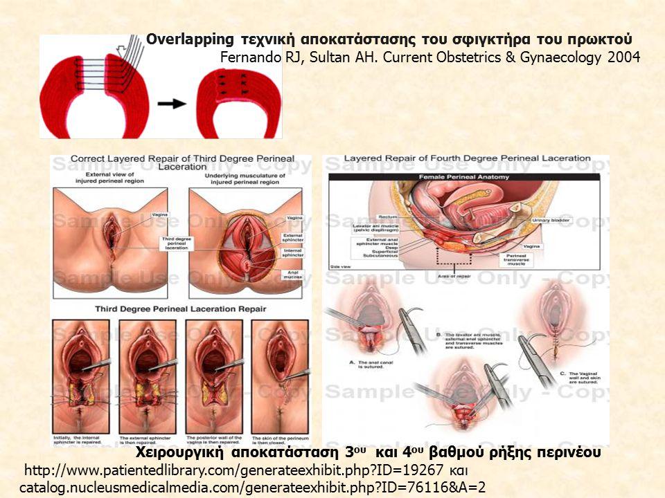 Μετεγχειρητικά, χορήγηση ευρέος φάσματος αντιβιοτικών οδηγεί σε μείωση λοιμώξεων, συριγγίων και διάσπασης τραύματος Χορήγηση υπακτικών και μαλακτικών των κοπράνων (Lactulose, Fybogel) Φυσικοθεραπεία και ασκήσεις πυελικού εδάφους για 6-12 εβδομάδες, παρακολούθηση από μαιευτήρα-γυναικολόγο για το συγκεκριμένο χρονικό διάστημα και συμβουλευτική για μελλοντική εγκυμοσύνη Εάν μια γυναίκα υποφέρει από ακράτεια ή πόνο μετεγχειρητικά -> παραπομπή σε ειδικό γυναικολόγο ή χειρουργό παχέος εντέρου για ενδοσκοπικό υπερηχογραφικό έλεγχο του πρωκτού και ορθοπρωκτική μανομετρία Πρόγνωση μετά από αποκατάσταση του έξω σφιγκτήρα: καλή, με 60-80% των γυναικών να είναι ασυμπτωματικές στους 12 πρώτους μήνες παρακολούθησης Επί συμπτωματολογίας και παθολογικών ευρημάτων από τη διερεύνηση προτείνεται η καισαρική τομή σε μελλοντικές κυήσεις.