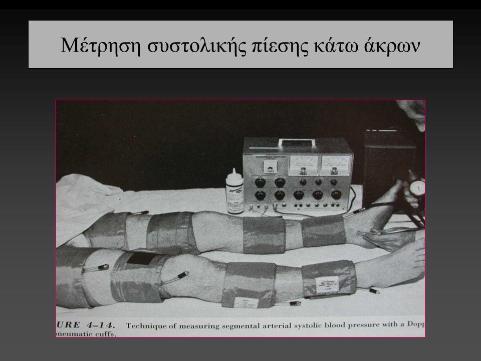 Μέτρηση συστολικής πίεσης κάτω άκρων