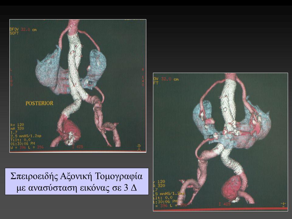 Σπειροειδής Αξονική Τομογραφία με ανασύσταση εικόνας σε 3 Δ