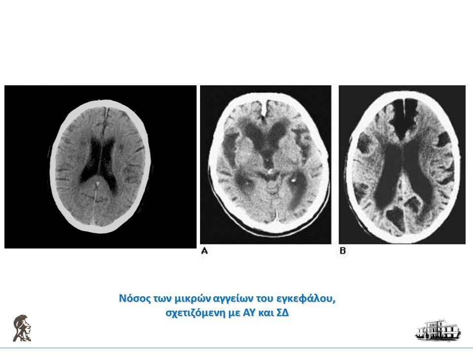 Νόσος των μικρών αγγείων του εγκεφάλου, σχετιζόμενη με ΑΥ και ΣΔ