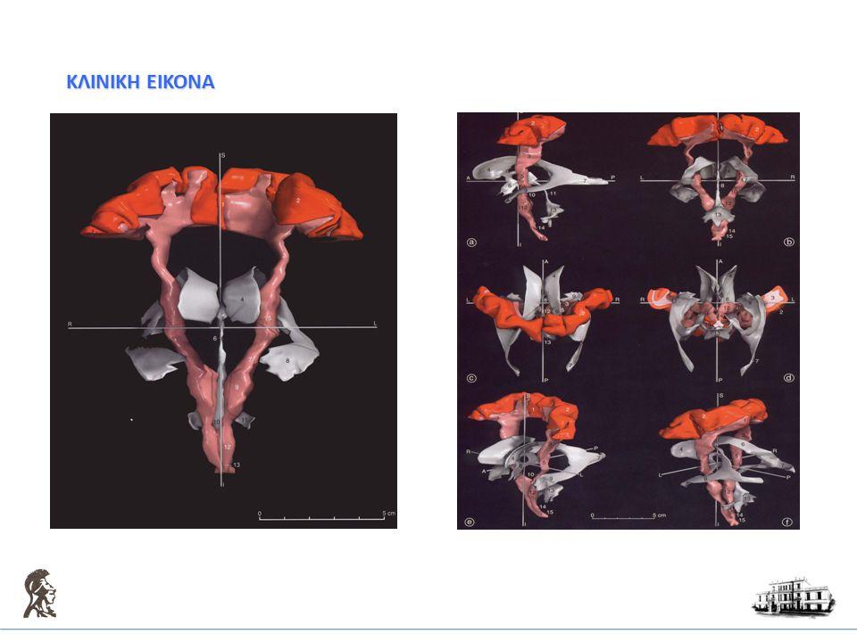 ΔΙΑΦΟΡΙΚΗ ΔΙΑΓΝΩΣΗ Μεταβολικές διαταραχές  Μεταβολικές διαταραχές  Λαβυρινθικές βλάβες  Παροδική σφαιρική αμνησία  Πιεστικές βλάβες περιφερικών νεύρων  Μετατρεπτική σημειολογία  Ισχαιμία  Αιμορραγία  Όγκος  Επιληπτική κρίση(πάρεση Todt)  Σκλήρυνση κατά πλάκας(νεαρά άτομα)  Ημικρανία(επιπεπλεγμένη)  Λοίμωξη