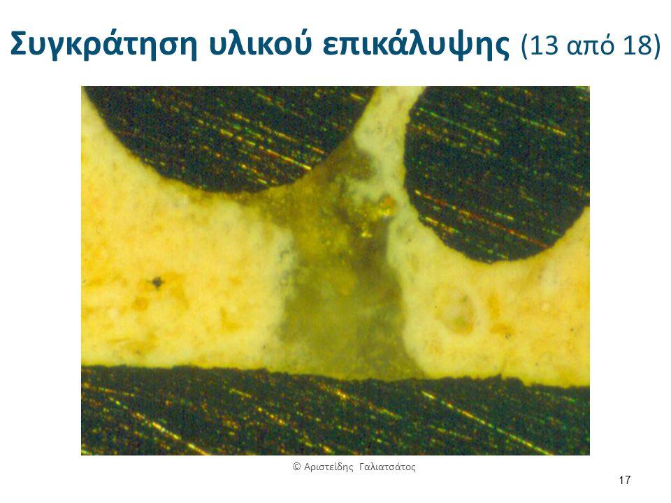 Συγκράτηση υλικού επικάλυψης (13 από 18) 17 © Αριστείδης Γαλιατσάτος