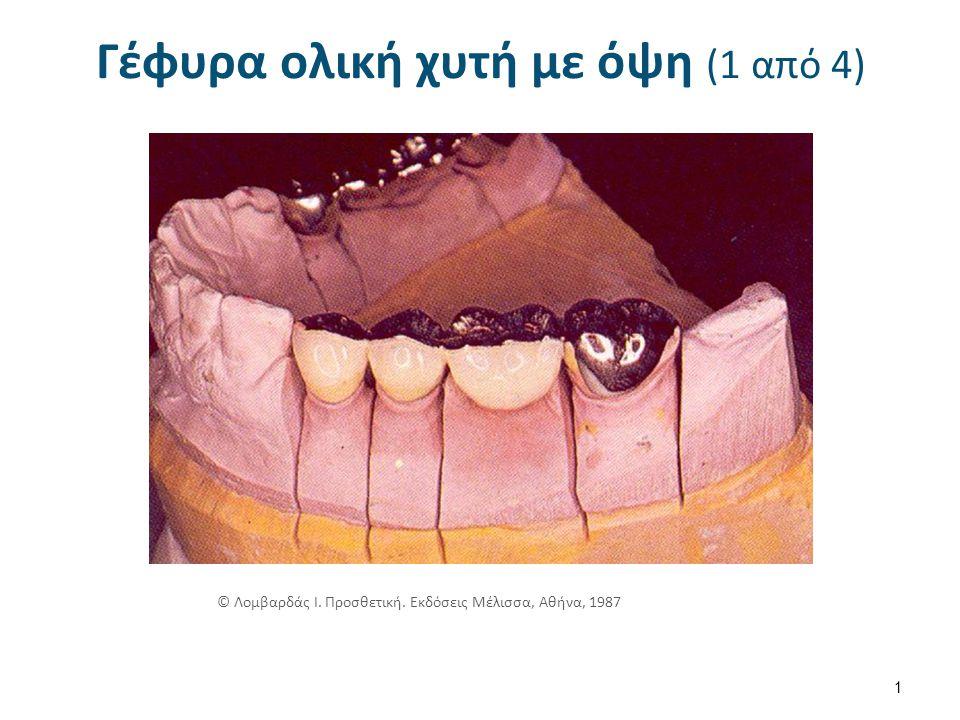 Γέφυρα ολική χυτή με όψη (1 από 4) 1 © Λομβαρδάς Ι. Προσθετική. Εκδόσεις Μέλισσα, Αθήνα, 1987