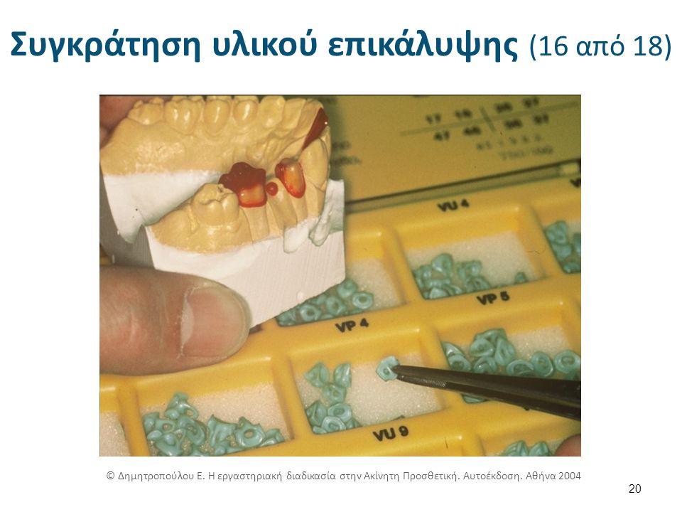 Συγκράτηση υλικού επικάλυψης (16 από 18) 20 © Δημητροπούλου Ε.