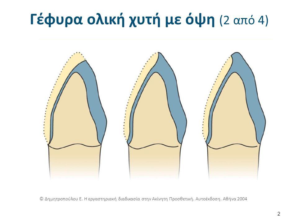 Συγκράτηση υλικού επικάλυψης (9 από 18) 13 © Δημητροπούλου Ε.