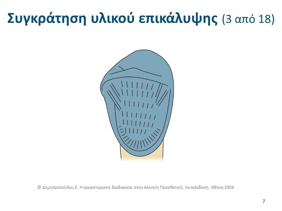Συγκράτηση υλικού επικάλυψης (4 από 18) 8 © Δημητροπούλου Ε.