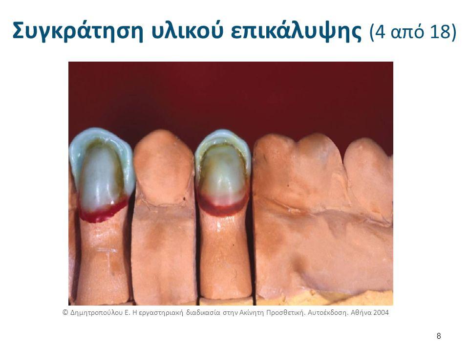 Συγκράτηση υλικού επικάλυψης (15 από 18) 19 © Δημητροπούλου Ε.