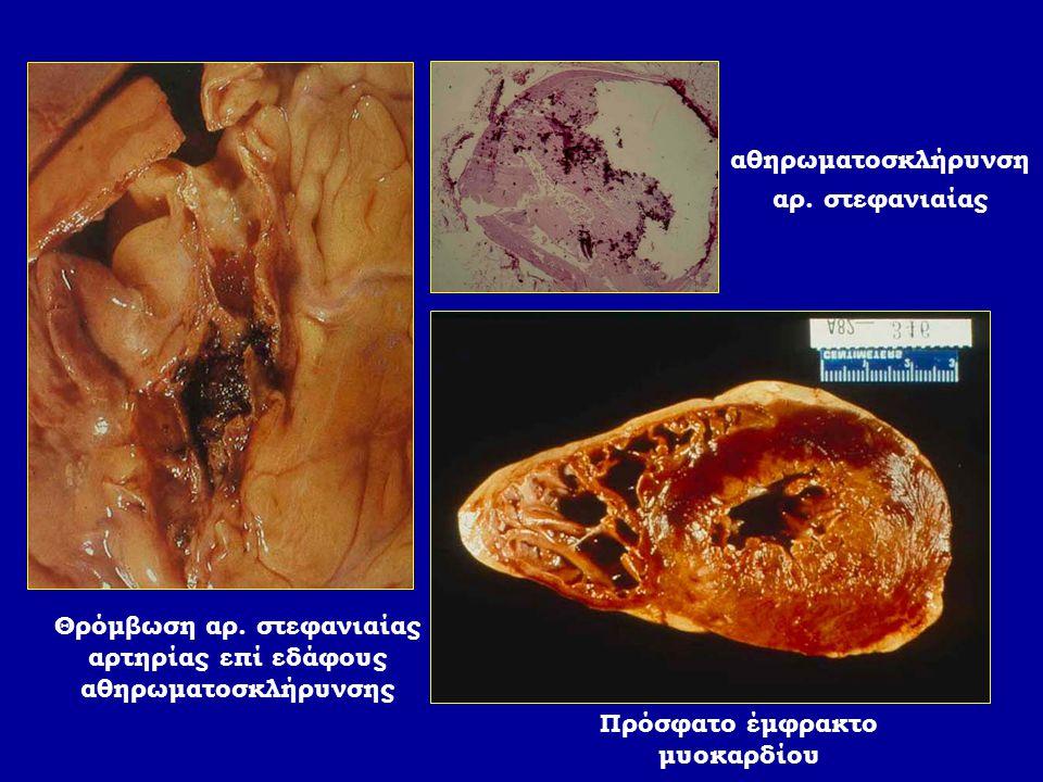 Θρόμβωση αρ. στεφανιαίας αρτηρίας επί εδάφους αθηρωματοσκλήρυνσης Πρόσφατο έμφρακτο μυοκαρδίου αθηρωματοσκλήρυνση αρ. στεφανιαίας