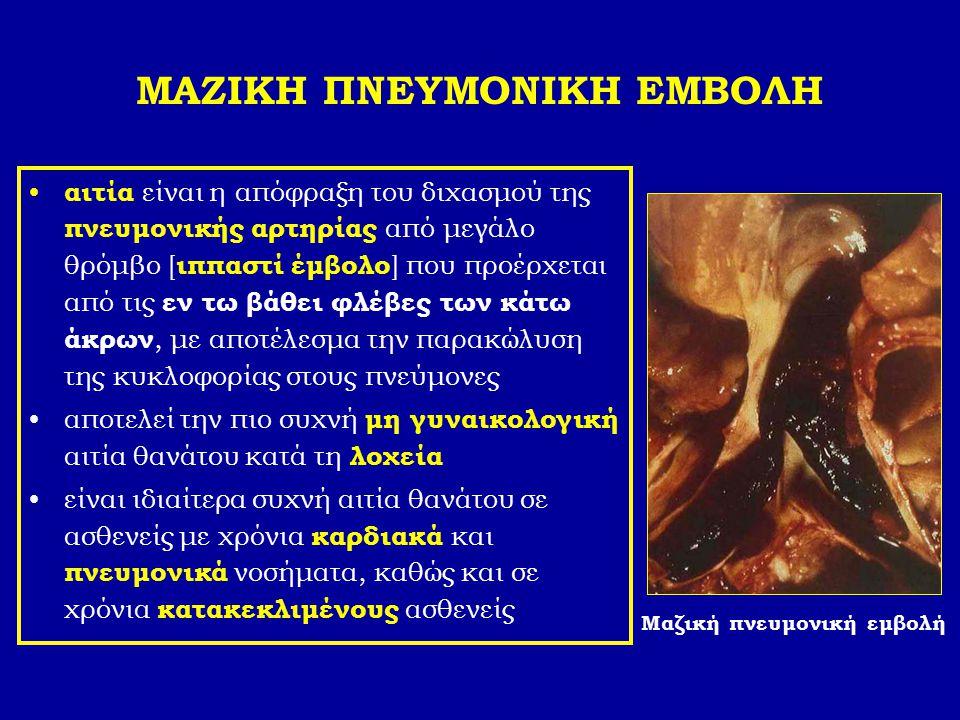 ΜΑΖΙΚΗ ΠΝΕΥΜΟΝΙΚΗ ΕΜΒΟΛΗ αιτία είναι η απόφραξη του διχασμού της πνευμονικής αρτηρίας από μεγάλο θρόμβο [ ιππαστί έμβολο ] που προέρχεται από τις εν τ