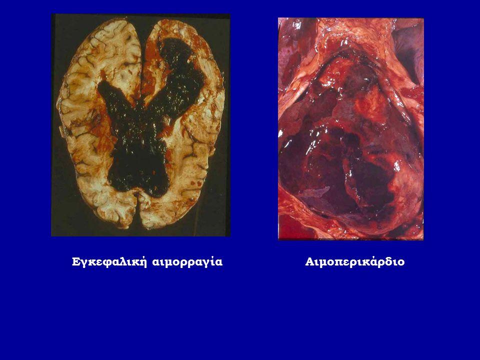 Εγκεφαλική αιμορραγίαΑιμοπερικάρδιο