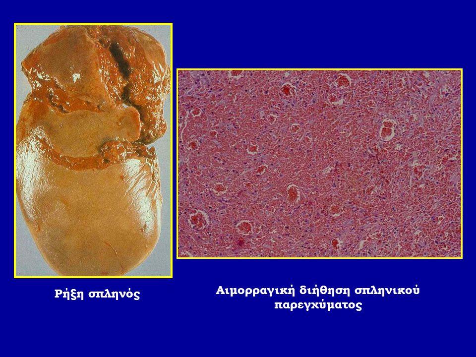 Ρήξη σπληνός Αιμορραγική διήθηση σπληνικού παρεγχύματος