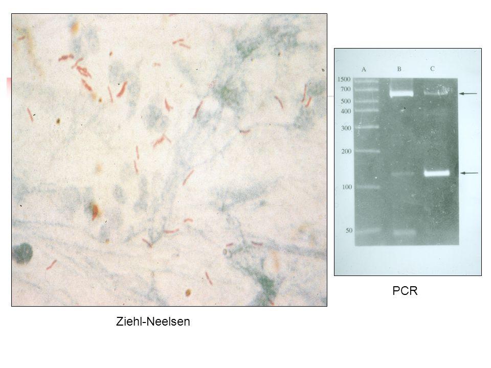 Ziehl-Neelsen PCR