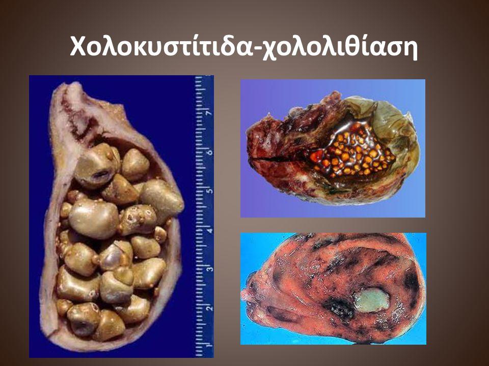 Χολοκυστίτιδα-χολολιθίαση