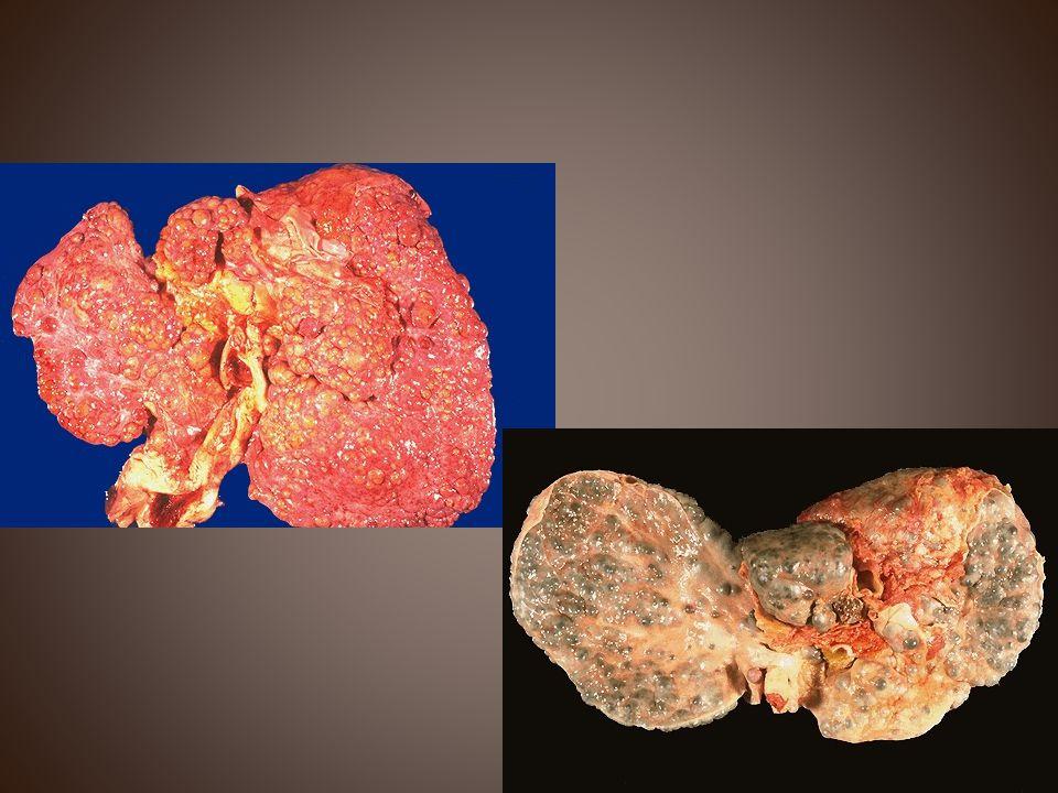 Χολαγγειοκαρκίνωμα ήπατος