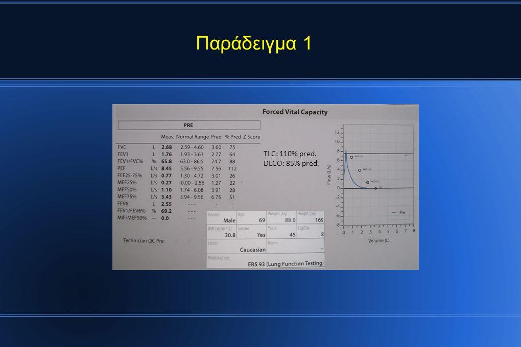 TLC: 110% pred. DLCO: 85% pred. Παράδειγμα 1