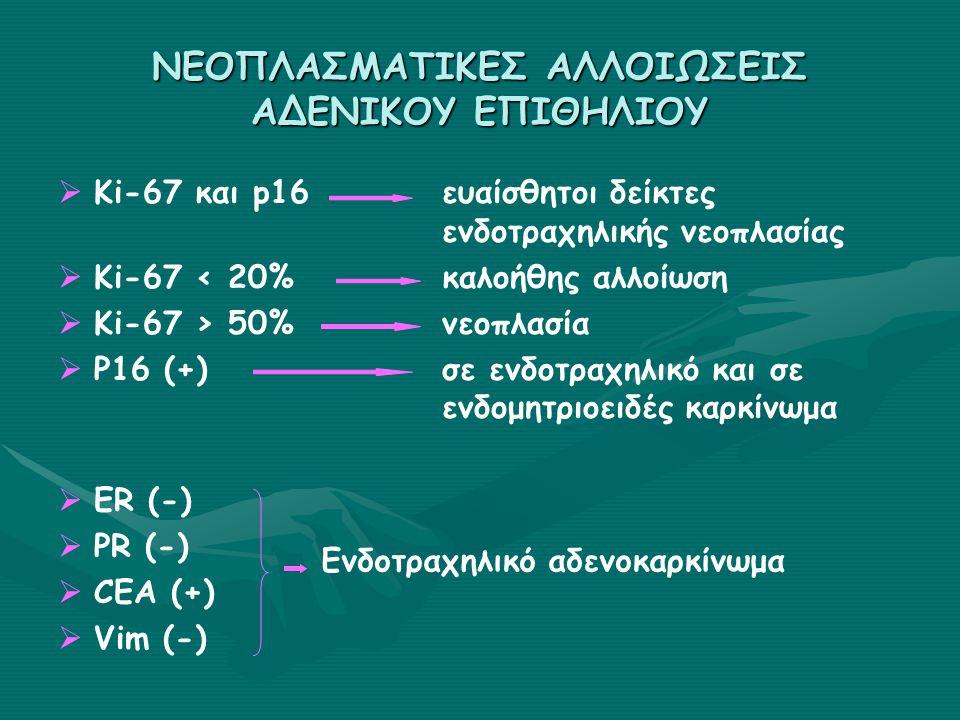 ΝΕΟΠΛΑΣΜΑΤΙΚΕΣ ΑΛΛΟΙΩΣΕΙΣ ΑΔΕΝΙΚΟΥ ΕΠΙΘΗΛΙΟΥ   Ki-67 και p16ευαίσθητοι δείκτες ενδοτραχηλικής νεοπλασίας   Ki-67 < 20%καλοήθης αλλοίωση   Ki-67 > 50%νεοπλασία   P16 (+)σε ενδοτραχηλικό και σε ενδομητριοειδές καρκίνωμα   ER (-)   PR (-)   CEA (+)   Vim (-) Ενδοτραχηλικό αδενοκαρκίνωμα
