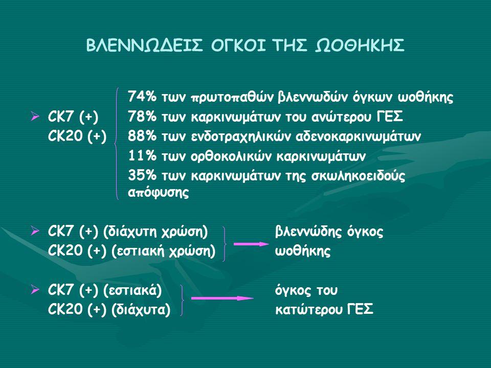 ΒΛΕΝΝΩΔΕΙΣ ΟΓΚΟΙ ΤΗΣ ΩΟΘΗΚΗΣ 74% των πρωτοπαθών βλεννωδών όγκων ωοθήκης   CK7 (+)78% των καρκινωμάτων του ανώτερου ΓΕΣ CK20 (+)88% των ενδοτραχηλικών αδενοκαρκινωμάτων 11% των ορθοκολικών καρκινωμάτων 35% των καρκινωμάτων της σκωληκοειδούς απόφυσης   CK7 (+) (διάχυτη χρώση)βλεννώδης όγκος CK20 (+) (εστιακή χρώση)ωοθήκης   CK7 (+) (εστιακά)όγκος του CK20 (+) (διάχυτα)κατώτερου ΓΕΣ