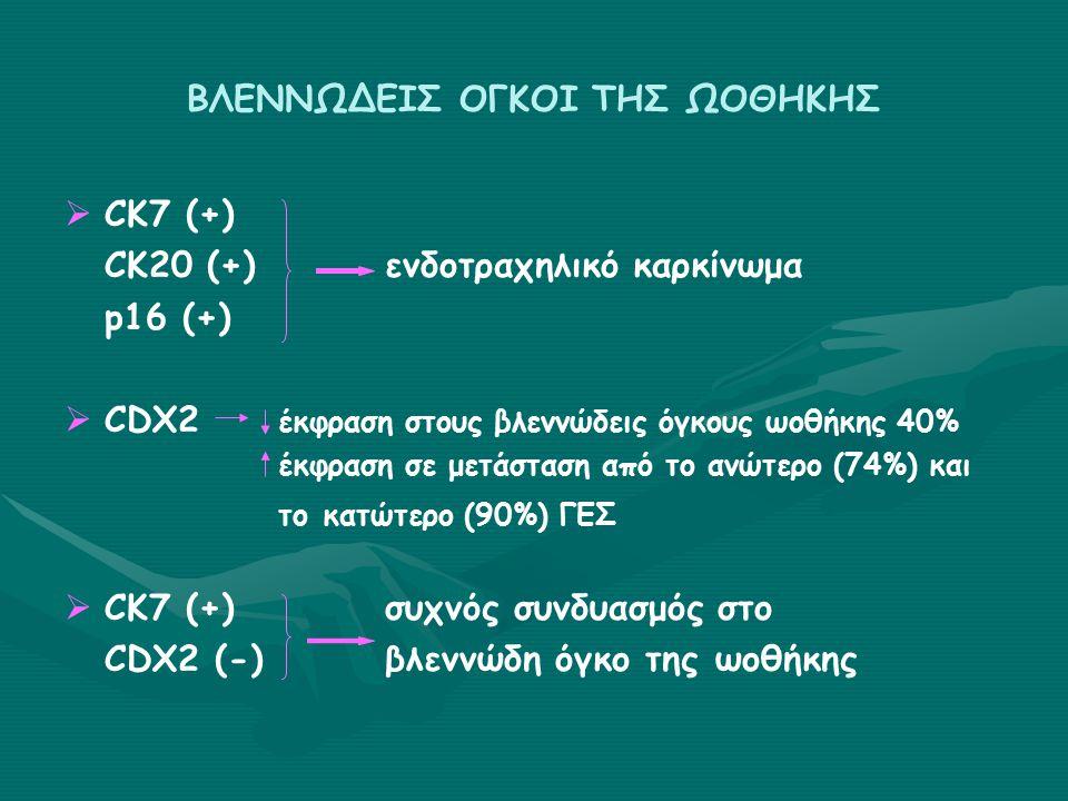 ΒΛΕΝΝΩΔΕΙΣ ΟΓΚΟΙ ΤΗΣ ΩΟΘΗΚΗΣ   CK7 (+) CK20 (+)ενδοτραχηλικό καρκίνωμα p16 (+)   CDX2 έκφραση στους βλεννώδεις όγκους ωοθήκης 40% έκφραση σε μετάσταση από το ανώτερο (74%) και το κατώτερο (90%) ΓΕΣ   CK7 (+)συχνός συνδυασμός στο CDX2 (-)βλεννώδη όγκο της ωοθήκης