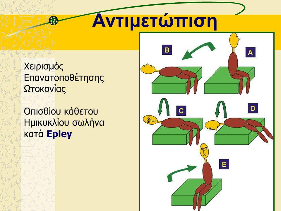 Χαρακτηριστικά Νυσταγμού Θέσεως Οπισθίου Καθέτου Ημικυκλίου Σωλήνα Λανθάνων χρόνος Νυσταγμός: –οριζοντιοκυκλικός –γεωτροπικός προς το αυτί που πάσχει
