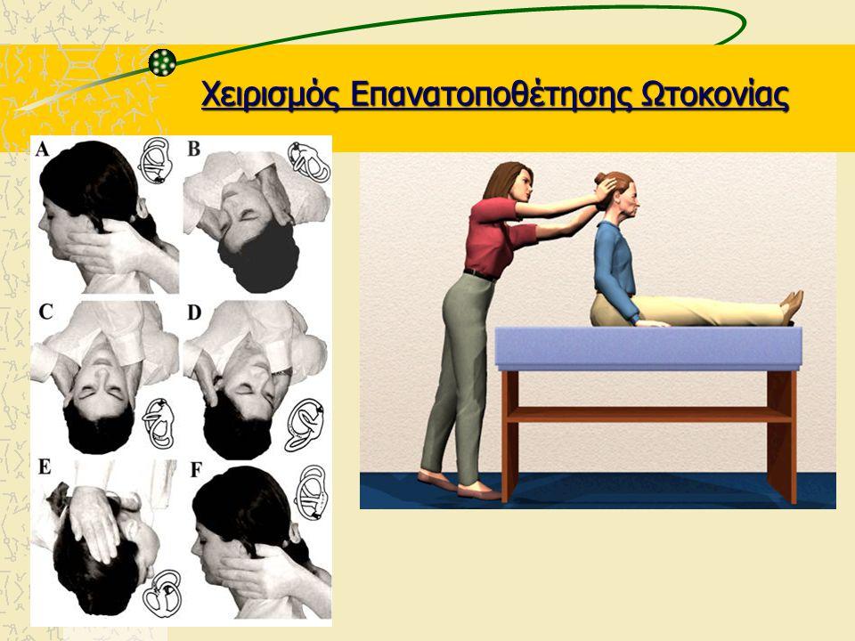 Αντιμετώπιση Χειρισμός Επανατοποθέτησης Ωτοκονίας Οπισθίου κάθετου Hμικυκλίου σωλήνα κατά Epley