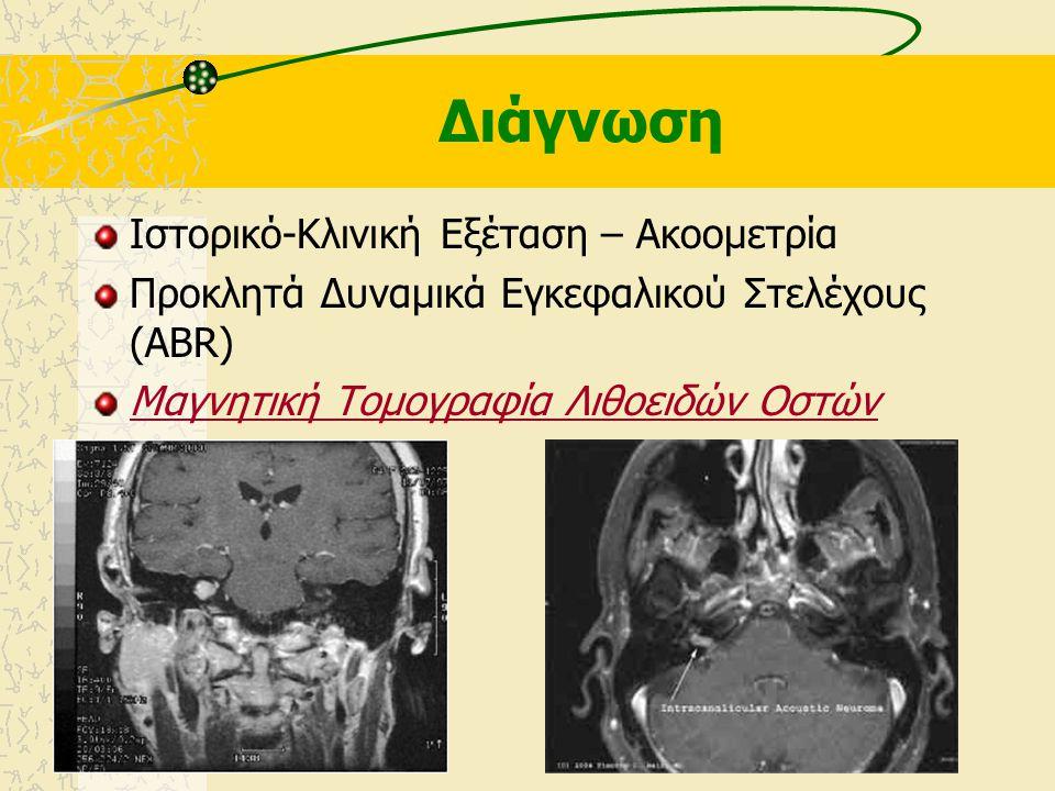 Κλινικά Ευρήματα  Μονόπλευρη Νευροαισθητήρια Βαρηκοΐα (σπάνια με αιφνίδια έναρξη, Αμφοτερόπλευρη σε NF2)  Ομόπλευρες Εμβοές  Αστάθεια ή ίλιγγος Πιε