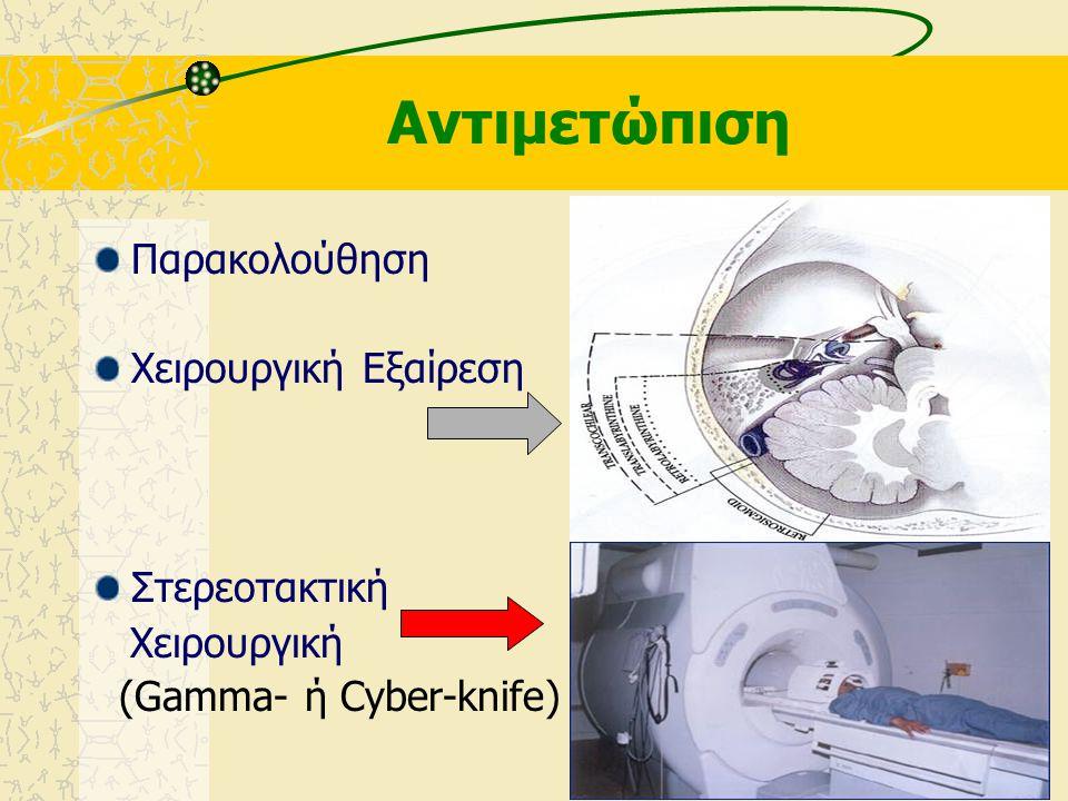 Διαφορική Διάγνωση από Νόσο του Meniere ! Ιδιοπαθή αιφνίδια βαρηκοΐα Άλλους κρανιακούς όγκους -Μηνιγγίωμα -Γλοίωμα -Επιδερμοειδής κύστη -Μεταστατικοί