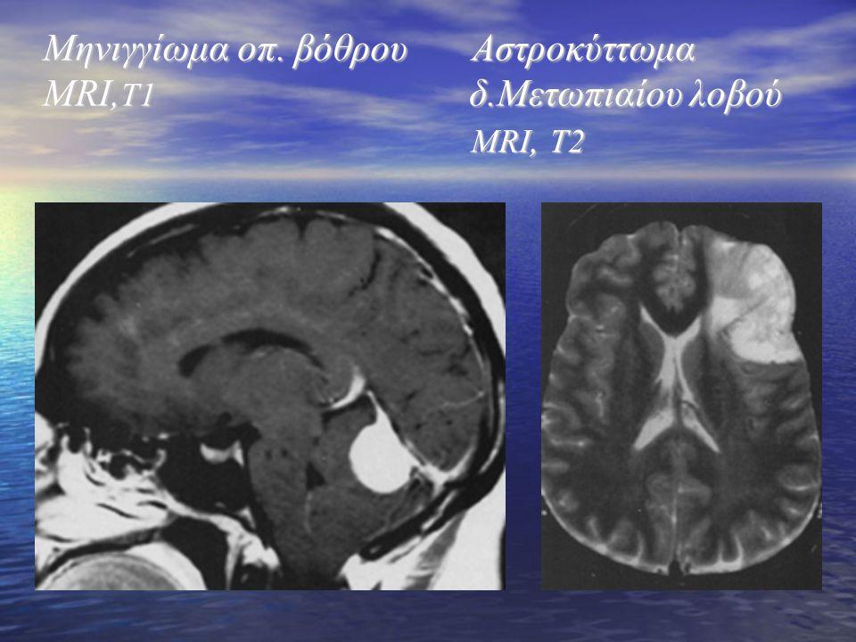 Μηνιγγίωμα οπ. βόθρου Αστροκύττωμα MRI, T1 δ.Μετωπιαίου λοβού MRI, T2