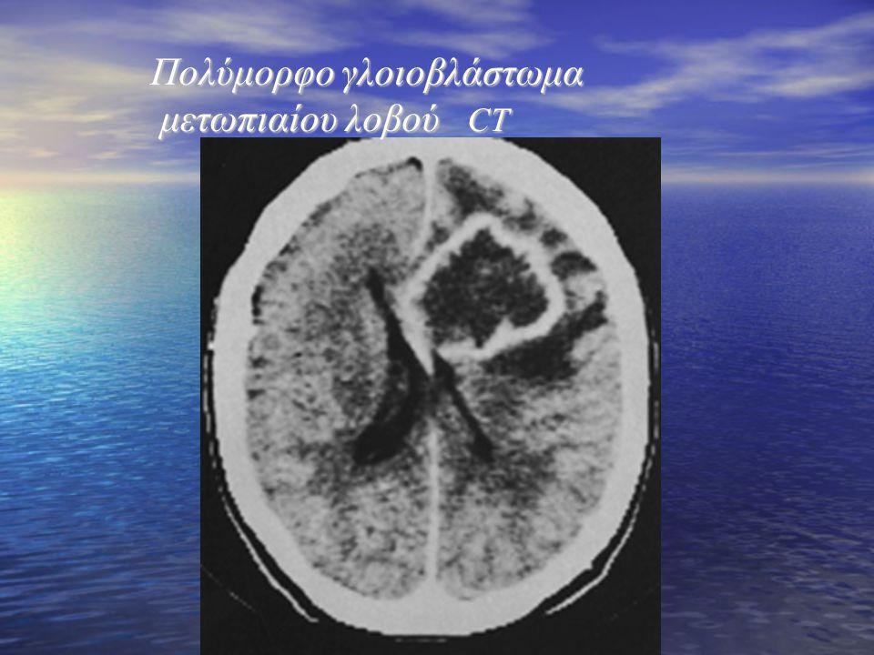 Πολύμορφο γλοιοβλάστωμα μετωπιαίου λοβού CT Πολύμορφο γλοιοβλάστωμα μετωπιαίου λοβού CT