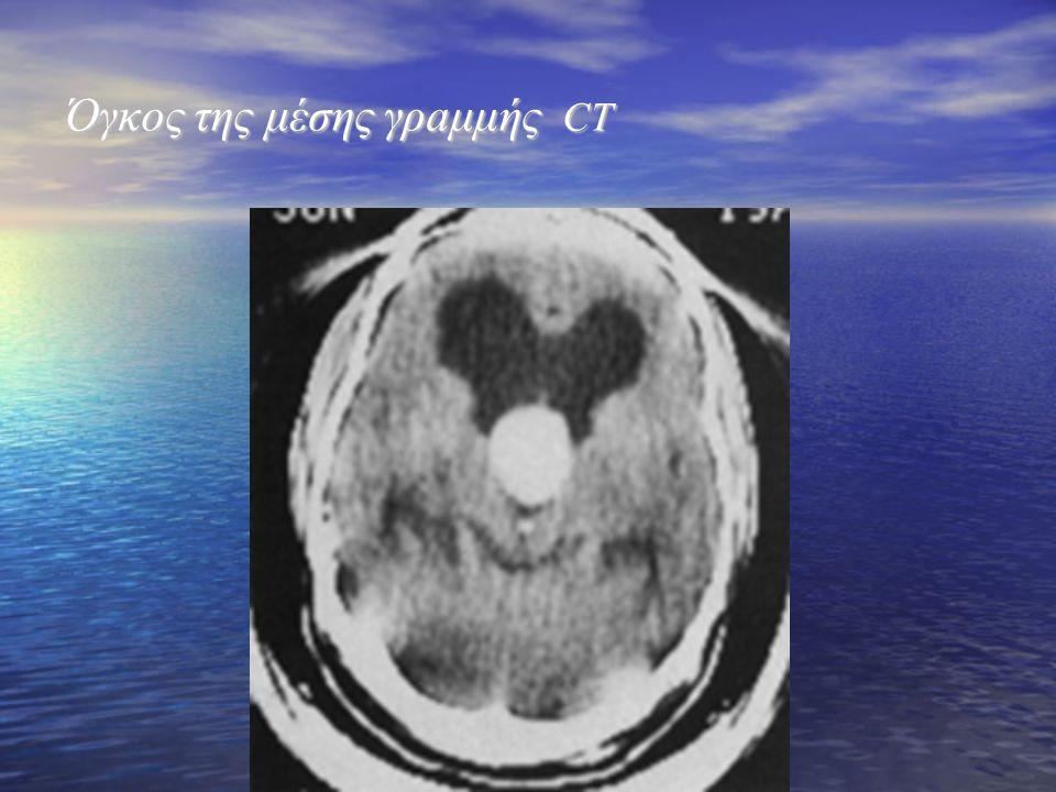 Όγκος της μέσης γρaμμής CT Όγκος της μέσης γρaμμής CT