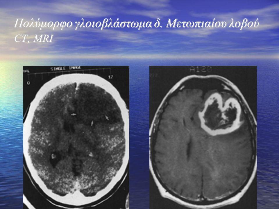 Πολύμορφο γλοιοβλάστωμα δ. Μετωπιαίου λοβού CT, MRI