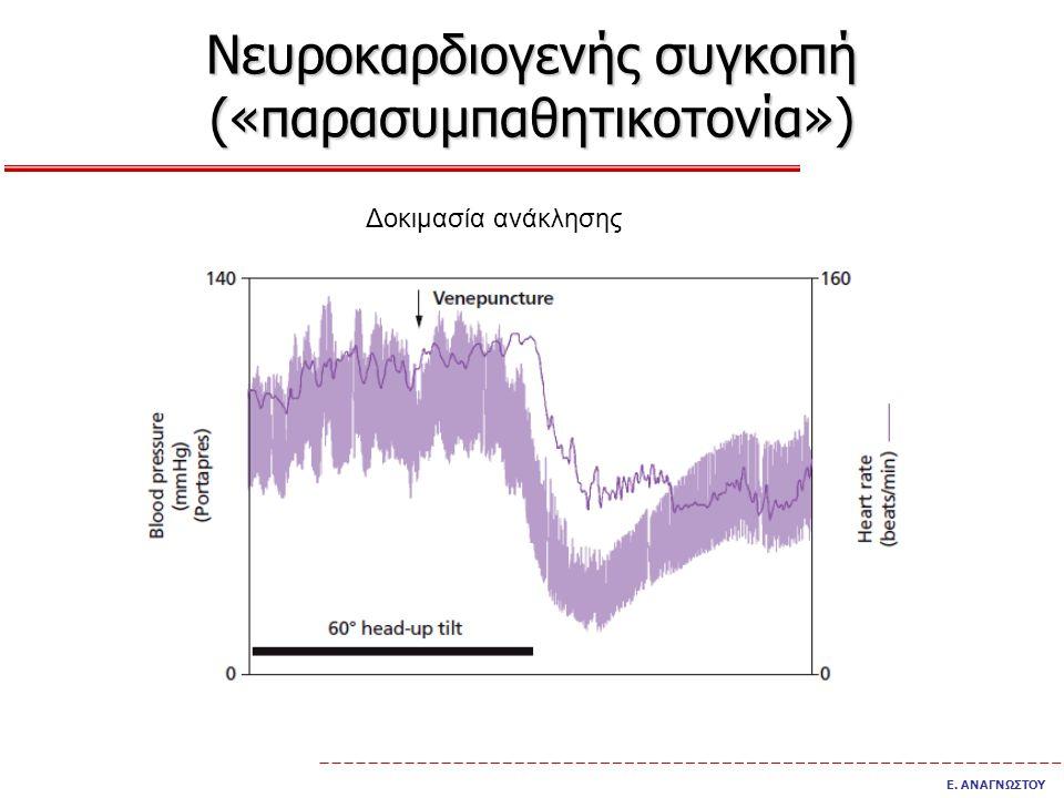 Νευροκαρδιογενής συγκοπή («παρασυμπαθητικοτονία») Ε. ΑΝΑΓΝΩΣΤΟΥ Δοκιμασία ανάκλησης