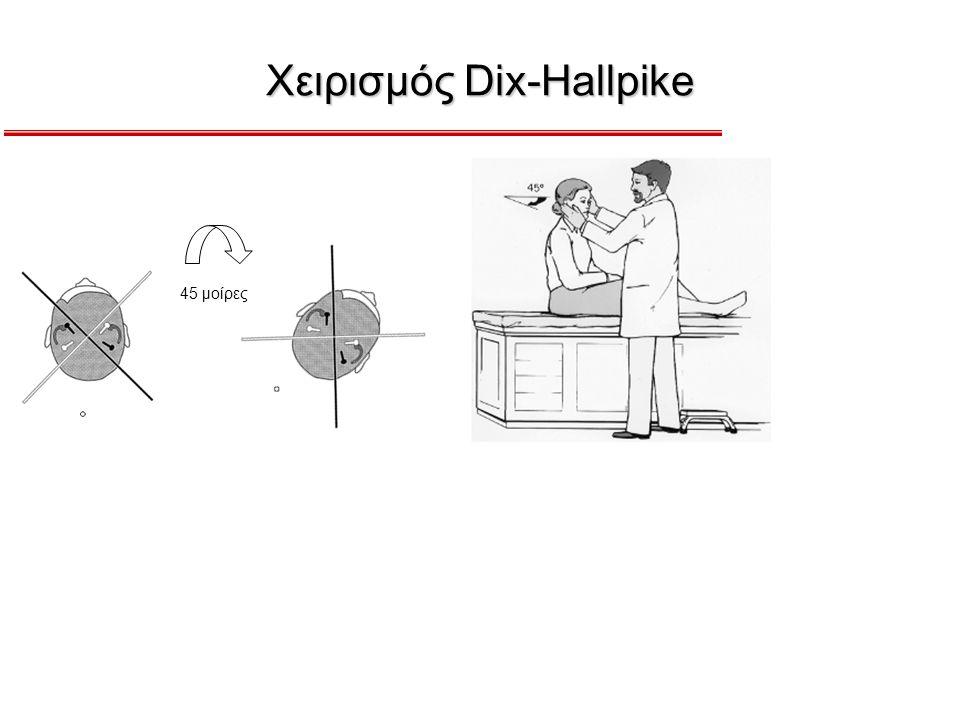 Χειρισμός Dix-Hallpike 45 μοίρες