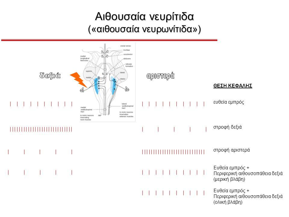 Αιθουσαία νευρίτιδα («αιθουσαία νευρωνίτιδα») ΘΕΣΗ ΚΕΦΑΛΗΣ ευθεία εμπρός στροφή δεξιά στροφή αριστερά Ευθεία εμπρός + Περιφερική αιθουσοπάθεια δεξιά (