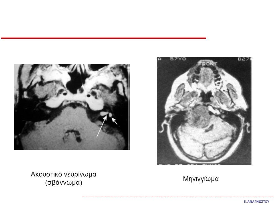 Ακουστικό νευρίνωμα (σβάννωμα) Μηνιγγίωμα