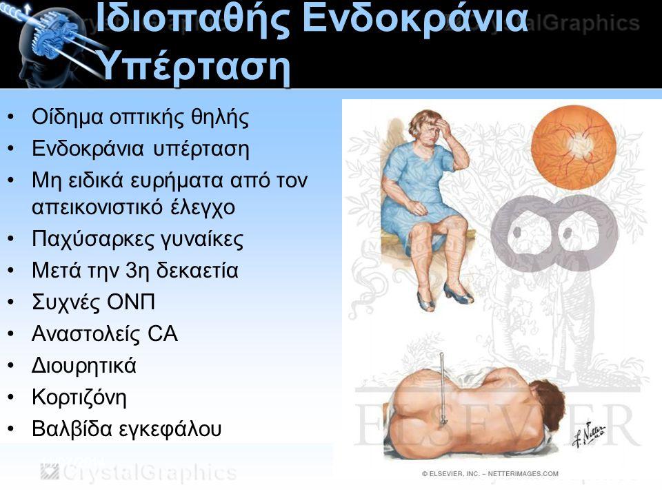 11/07/2014 Ιδιοπαθής Ενδοκράνια Υπέρταση Οίδημα οπτικής θηλής Ενδοκράνια υπέρταση Μη ειδικά ευρήματα από τον απεικονιστικό έλεγχο Παχύσαρκες γυναίκες