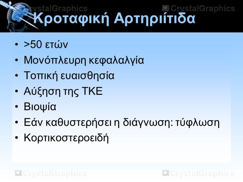11/07/2014 Κροταφική Αρτηριίτιδα >50 ετών Μονόπλευρη κεφαλαλγία Τοπική ευαισθησία Αύξηση της ΤΚΕ Βιοψία Εάν καθυστερήσει η διάγνωση: τύφλωση Κορτικοστ