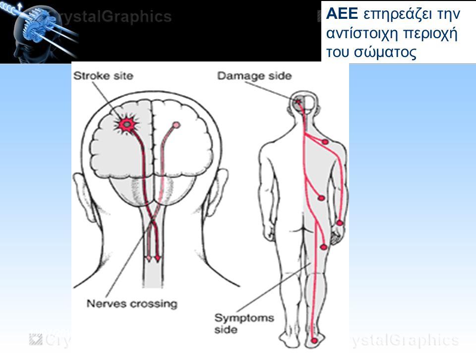 11/07/2014 ΑΕΕ επηρεάζει την αντίστοιχη περιοχή του σώματος