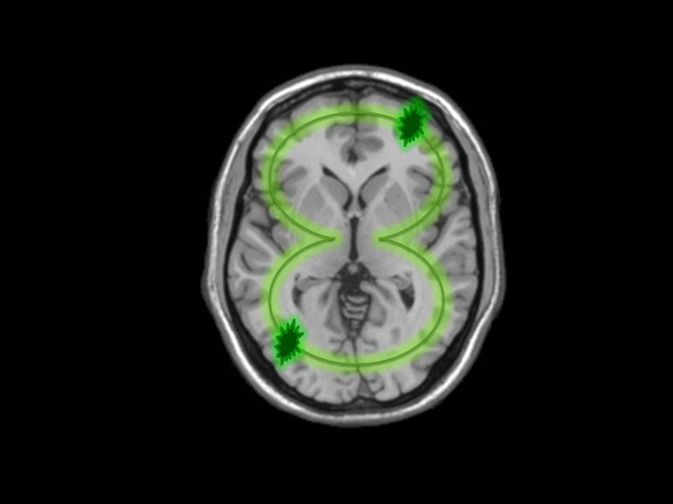 11/07/2014 Αντιμετώπιση Επί προσβολής των αναπνευστικών μυών: διασωλήνωση και ΜΥΑ Έλεγχος ΑΠ και σφυγμού: συχνά επεισόδια δυσαυτονομίας Υψηλές δόσεις ανοσοσφαιρινών
