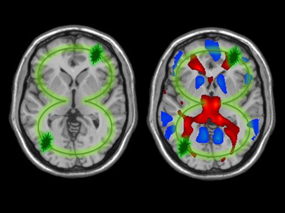 11/07/2014 Ισχαιμικό ΑΕΕ Είδη Ισχαιμικού ΑΕΕ –Εμβολικό Blood clot travels to the brain –Θρομβωτικό Blood flow is blocked to the brain